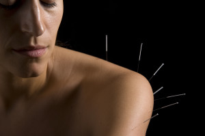 Shoulder acupuncture